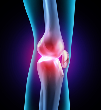 Glucasomine may be an answer for patients with osteoarthritis